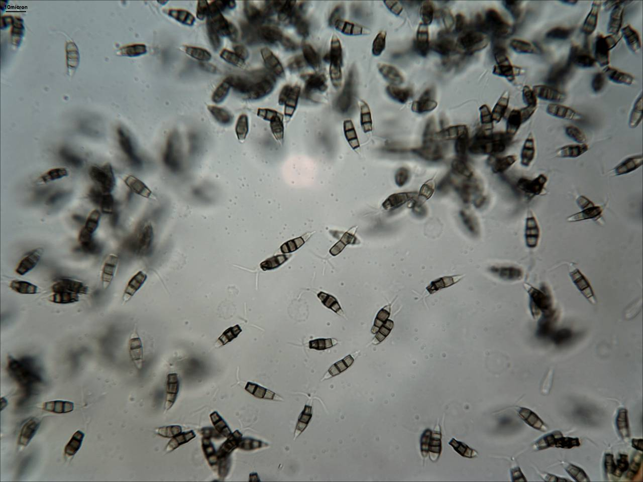 a description of pestalotiopsis microspora The present invention relates to the novel isolated 12-30 strain of pestalotiopsis microspora capable of producing novel antioxidant and antimycotic agents.
